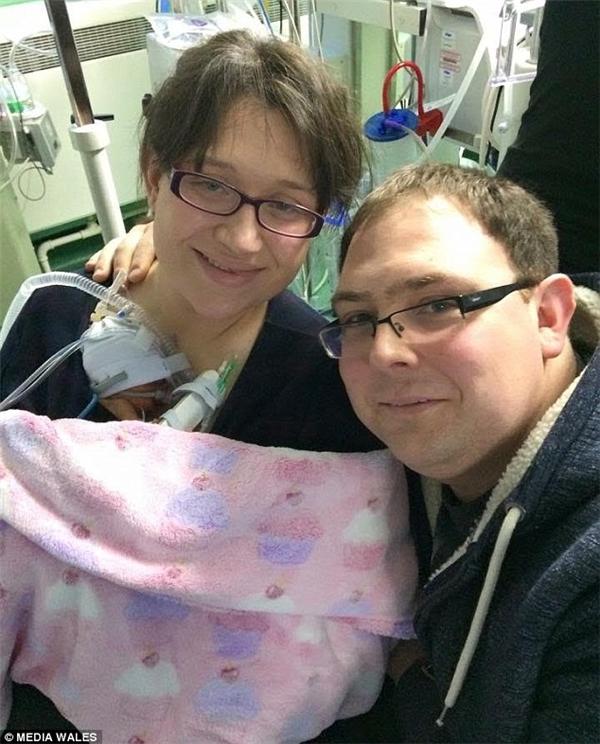 Alice - đứa con gái đáng thương của đôi vợ chồng trẻ Tiffany Thomas và Matthew Heather, khi vừa sinh ra nặng không đến 1kg, sức khỏe cực kì suy yếu. (Ảnh Media Wales)
