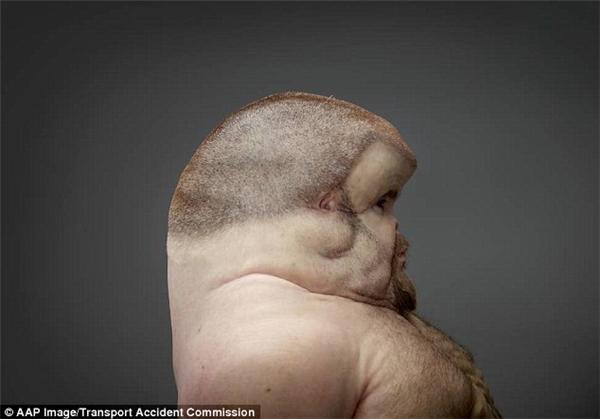 Các bộ phận cơ thể bị biến dạng của Graham giúp mọi người ý thức được cơ thể người dễ chịu thương tổn như thế nào trong các vụ tai nạn giao thông.(Ảnh: Daily Mail)