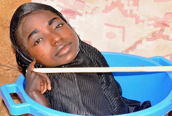 Rahma vốn sinh ra bình thường cho đến khi gặp một cơn sốt lúc 6 tháng tuổi.
