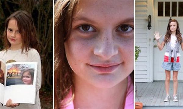 "Gương mặt ""nguy hiểm"" theo năm tháng của Zoe."
