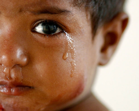 Amira, nạn nhân của cơn lũ kinh hoàng bị mắc bệnh về da và dạ dày, bật khóc ở bệnh việnSukkur. Nhiều người lo ngại rằng hàng trăm ngàn em bé được sinh ra ở các khu vực bị ảnh hưởng lũ lụt của nước này trong vòng 6 tháng tới, sẽ cónguy cơsuy dinh dưỡng nghiêm trọng vì khan hiếm lương thực.