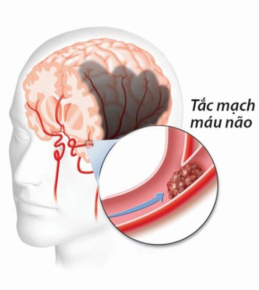 Nặng hơn, vùng não sẽ chết và người bệnh có thể tử vong.