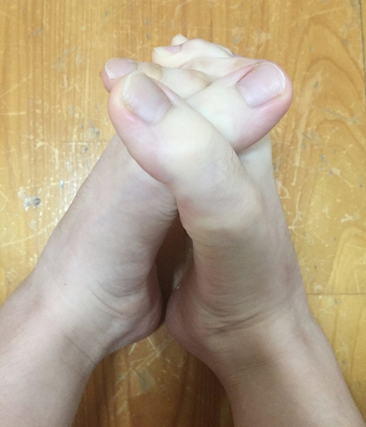 Bạn nghĩ đây là chân hay tay?