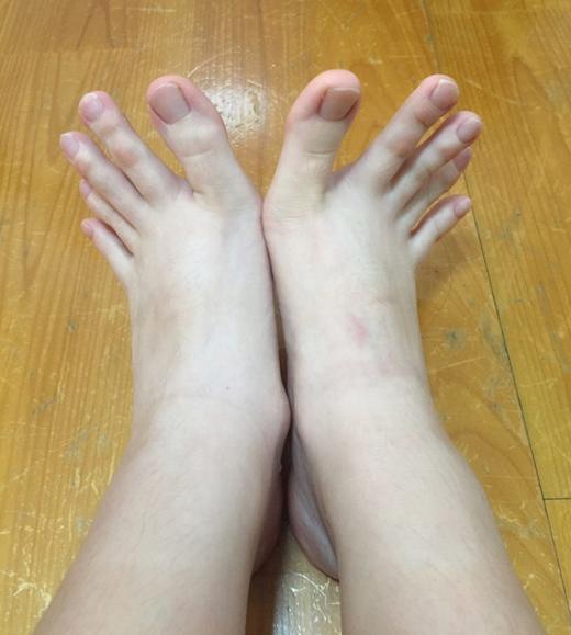 Ngón chân gì mà dài như ngón tay vậy?