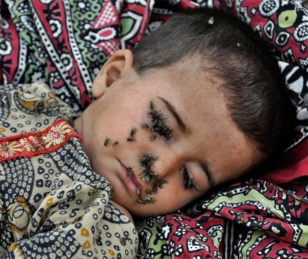 Bé gái 2 tuổi bị tiêu chảy đang nằm trên đùi mẹ bên ngoài lều của gia đình,mặc cho ruồi bu đầy mặt.Trận lụt nghiêm trọng đầu tháng 7 đã quét qua 1/4 vùng lãnh thổ Pakistan và nhấn chìm nhiều vùng đất của quốc gia này,cướp đi mạng sống củahàng chục người. Những người sống sót sau cơn lũ phải đối mặt với tình trạng thiếu lương thực, không có chốn nương thân và bệnh dịch hoành hành.