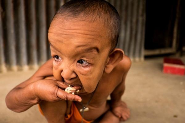 Gia cảnh khó khăn nên cậu bé sống trong điều kiện thiếu thốn.