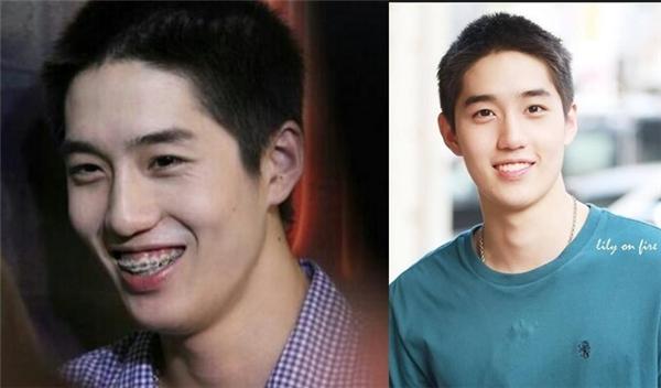 Nhan sắc của hai diễn viên phim Tuổi Nổi Loạn trước và sau khi tháo niềng răng. (Ảnh: Internet)