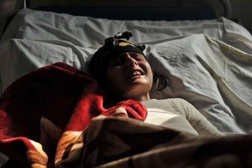 """Cô bé Aatifa tại Afghanistan lấy chồng từ năm 14 tuổi đã quyết định tẩm xăng tự thiêu để thoát khỏi cuộc hôn nhân không hạnh phúc, cô cho biết mình thường xuyên bị mẹ chồng cằn nhằn và xúi giục chồng đánh cô. Aatifa chỉ là một trong hàng nghìn trường hợp những cô dâu """"nhỏ"""" đã tự thiêu để chấm dứt nỗi đau cùng cực không có hồi kết, đối với các em cái chết còn dễ chịu hơn sự sống."""