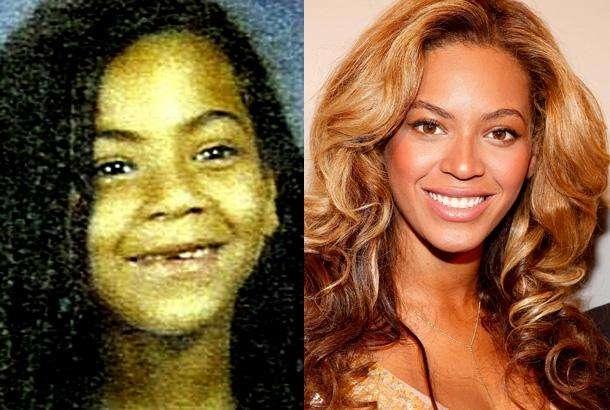 Có lẽ nhan sắc của Beyoncé chỉ thực sự thay đổi khi cô hoàn tất công cuộc thay răng.