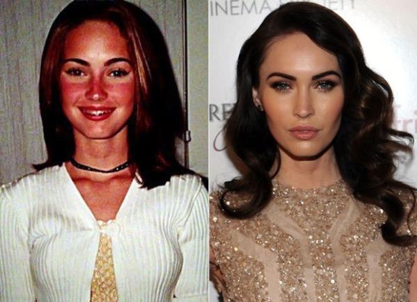 Chính Megan Fox đã từng thừa nhận mình có phẫu thuật thẩm mĩ để có được vẻ đẹp sắc sảo như hiện tại. Nếu nhìn lại ảnh quá khứ của cô thì có thể thấy đó là quyết định hợp lí.