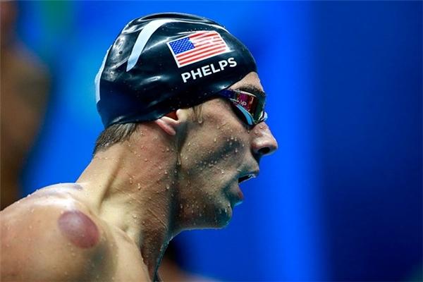 Với các VĐV của đoàn thể thao Mỹ, giác hơi là bí kíp giúp họ giảm bớt những cơn đau. Mới đây, ngôi sao bơi lội Michael Phelps (ảnh) đã sử dụng liệu pháp này tại Olympic.