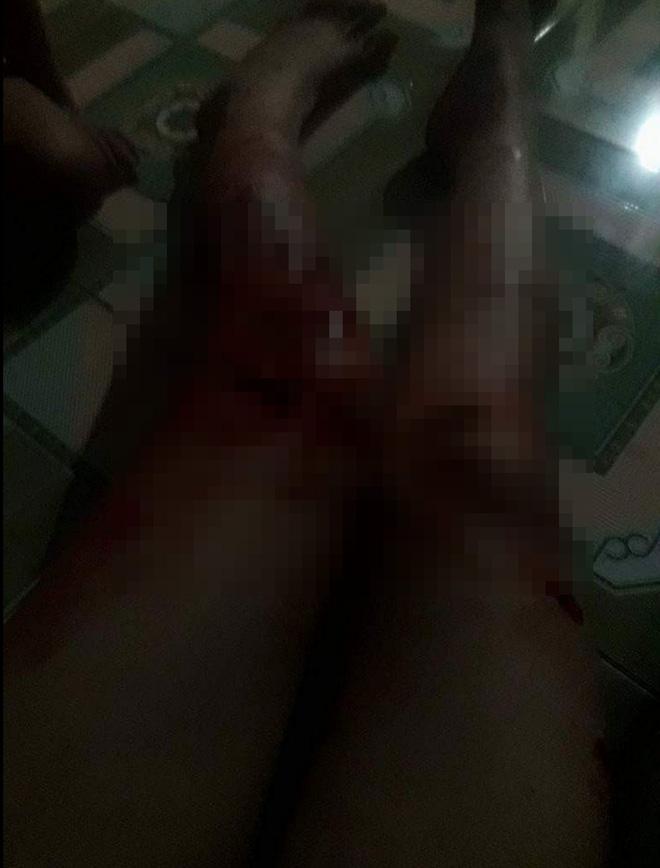 Xót xa phụ nữ bị chồng đánh phải lấy kim tự khâu vết thương cho mình