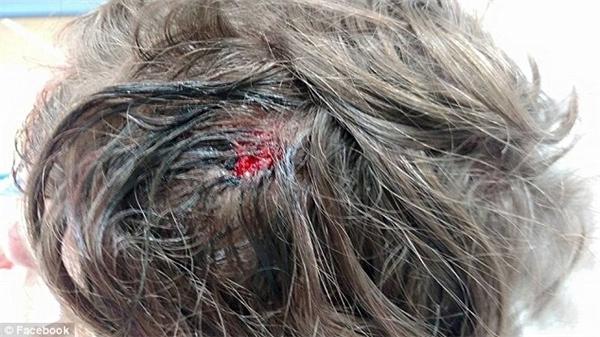 Vết thương do sét đánh trên đỉnh đầu của Jonathan.(Ảnh: Daily Mail)