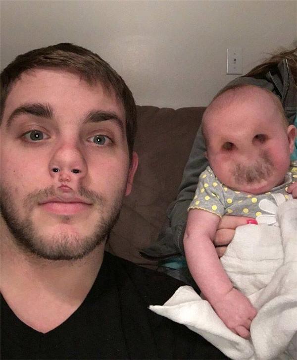 """""""Em bé lỗ mũi"""" này trông sợ quá đi thôi."""