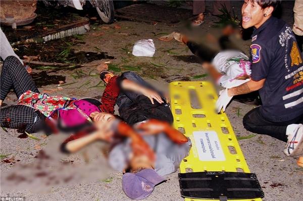Các du khách bị thương được sơ cứu tại chỗ và đưa đến bệnh viện địa phương.(Ảnh: Daily Mail)