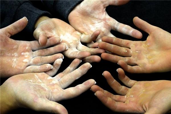 13. Mặc dù người khác nghĩ rằng bàn tay của các vận động viên thể dục dụng cụ rất thô thiển nhưng với họ đó là dấu hiệu vinh quang.