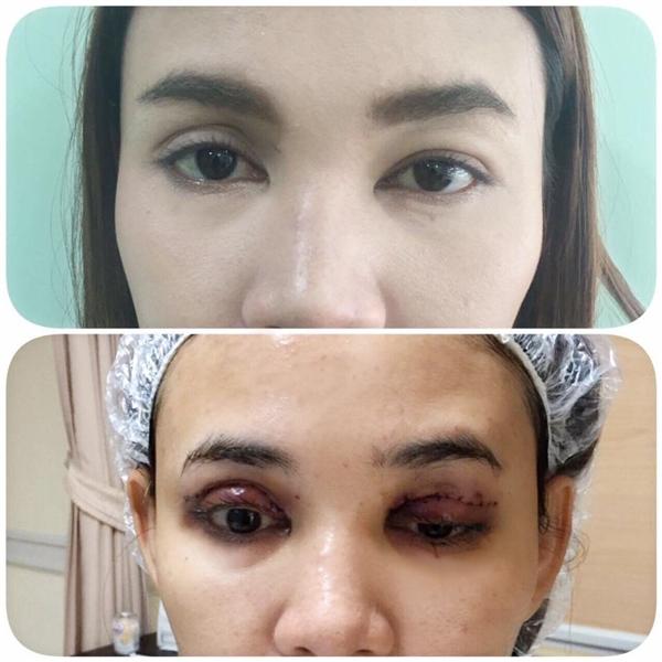 Chất silicon trên trán đã chảy xuống mắt cô khiến cho mắt bị nhiễm trùng nghiêmtrọng.