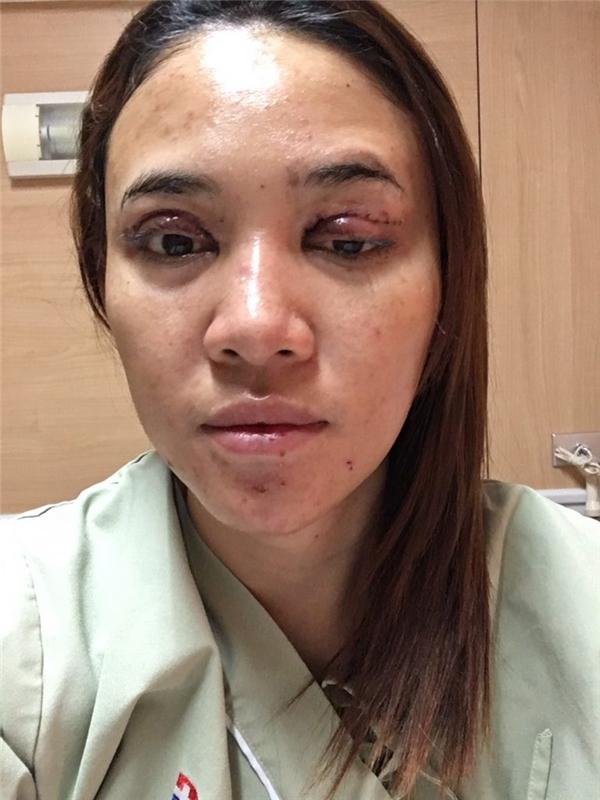 Cô phảiphẫu thuật mí mắt để nạo lớp silicon ra nhằmtránh bị mù.