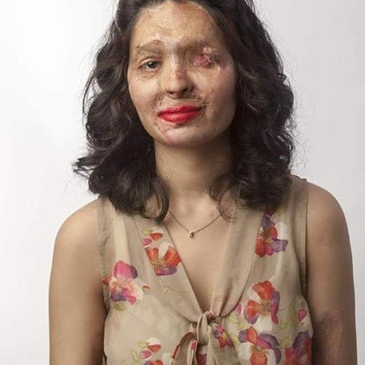 Cô gái 19 tuổi bị tạt axit sẽ sải bước ở tuần lễ thời trang New York