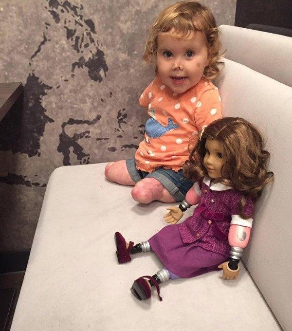Cô bé 2 tuổi bị cụt tay chân tìm lại nụ cười nhờ món quà đặc biệt