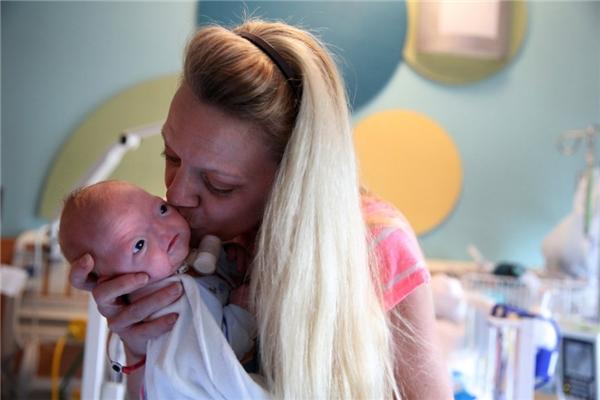 Cảm động tình yêu người mẹ dành cho đứa con mang khuôn mặt dị dạng
