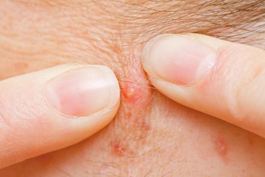 Dùng tay nặn mụn là một trong những nguyên nhân hàng đầu gây ra những vết sẹo rỗ xấu xí.