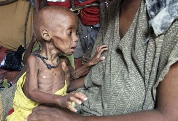 Một đứa bé bị suy dinh dưỡng tại một túp lều tạm thuộc trại tị nạnMogadishu.