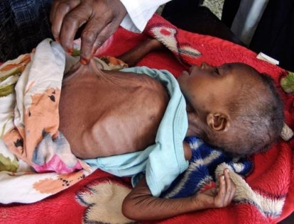 Abdirisak Mursal, 3 tuổibị suy dinh dưỡng đangđược điều trị tại bệnh viện Banadir ở Mogadishu, Somali.