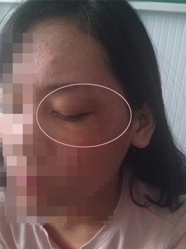 Cô gái đăng ảnh mắt bị bầm tím và nói rằngdo bạn trai đánh.(Ảnh: Internet)