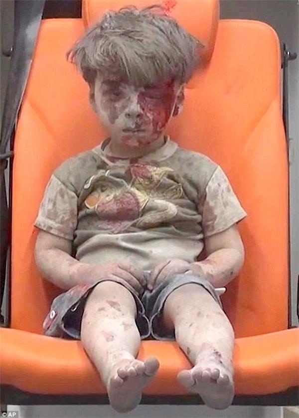 Cậu bé Omran Daqneesh, 5 tuổi, bị thương trong cuộc không kích ở Aleppo. (Ảnh: AP)