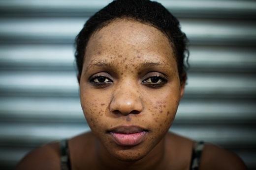 Aisha đắp mặt nạ ở thẩm mĩ viện. Trong vòng hai tháng, các mụn viêm nổi lên khắp mặt.