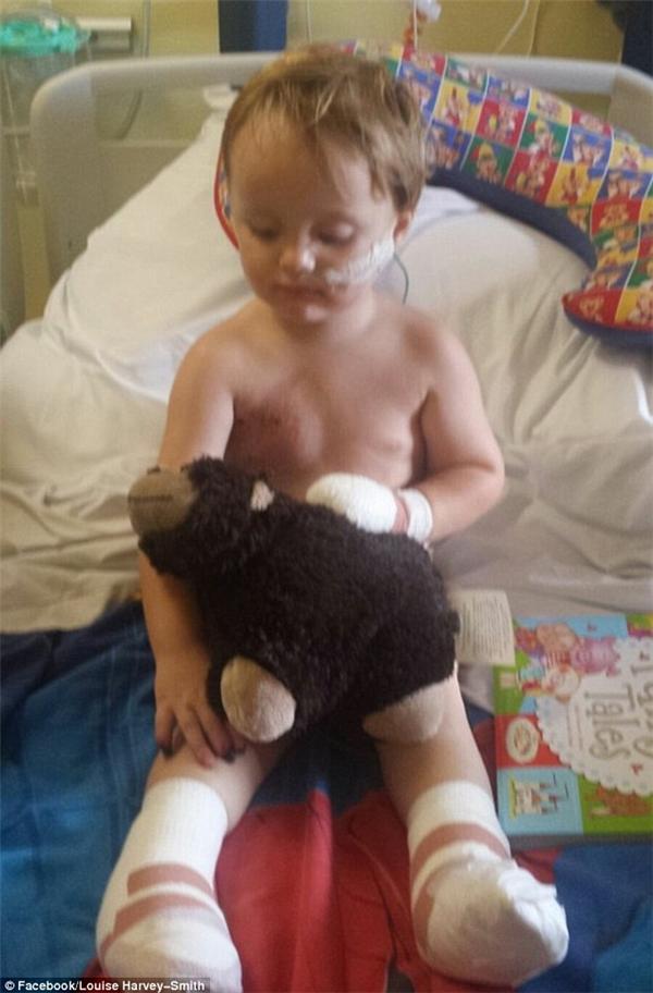 Reuben đã vĩnh viễn mất đi đôi chân và một số ngón tay của mình chỉ vì quyết địnhsai lầm chết ngườicủa bác sĩ.
