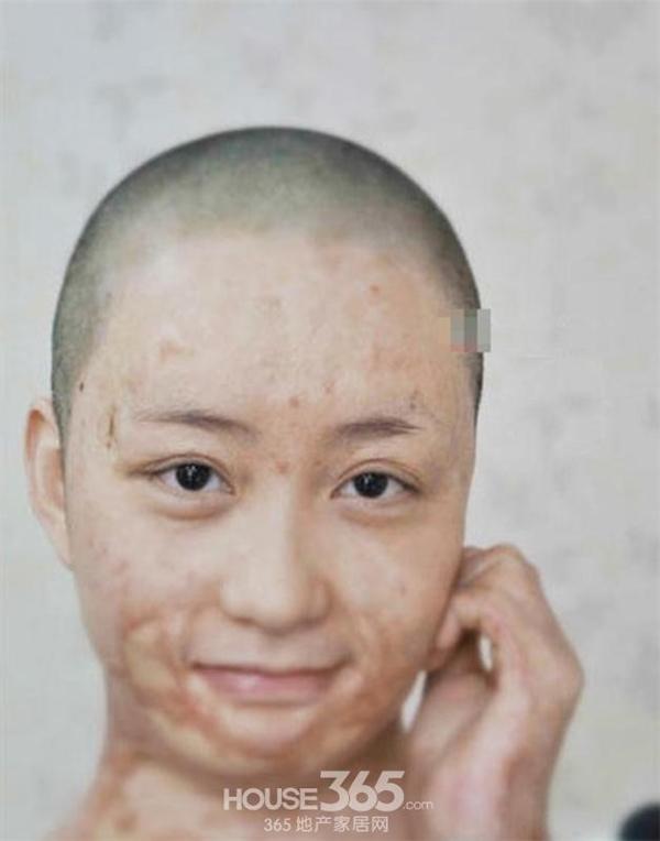 Vì từ chối tình yêu của một thiếu gia giàu có, Chu Nham đã bị tẩm xăng thiêu sống. Dù được cứu sống nhưng cô bị bỏng nặng và phải trải qua hàng chục cuộc cấy ghép da vô cùng đau đớn.
