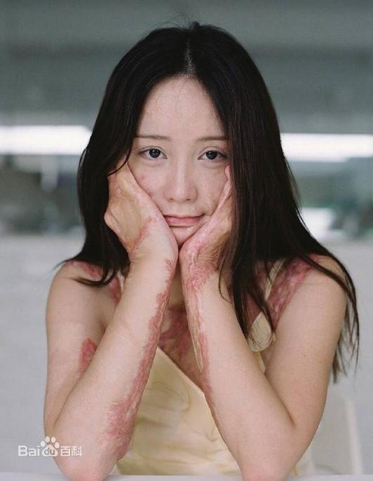 Sau gần 5 năm kể từ vụ tai nạn, Chu Nham lần đầu tên công khai xuất hiện trên mạng xã hội. Trông cô vẫn còn giữ lại những nét xinh đẹp vốn có của mình.