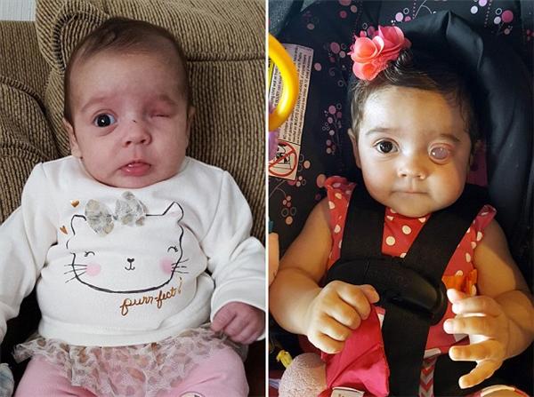 Izabella mắc microphthalmia là do di truyền từ bà cố nội và bố mình.