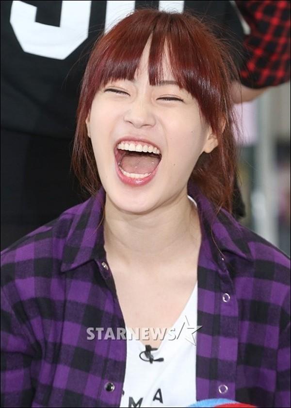 Ngay từ khi mới ra mắt với tư cách thành viên của Kara, Youngji đã nhận được sự yêu mến của đông đảo người hâm mộ nhờ nụ cười hở lợi cực đáng yêu.
