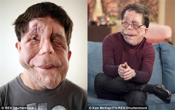 Adam bị biến dạng mặt nghiêm trọng do các khối u gây ra.
