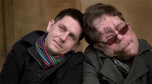 May mắn hơn anh trai vì không bị các khối u hủy hoại khuôn mặt nhưng Neil lại bị chứng động kinh và mất trí nhớ.