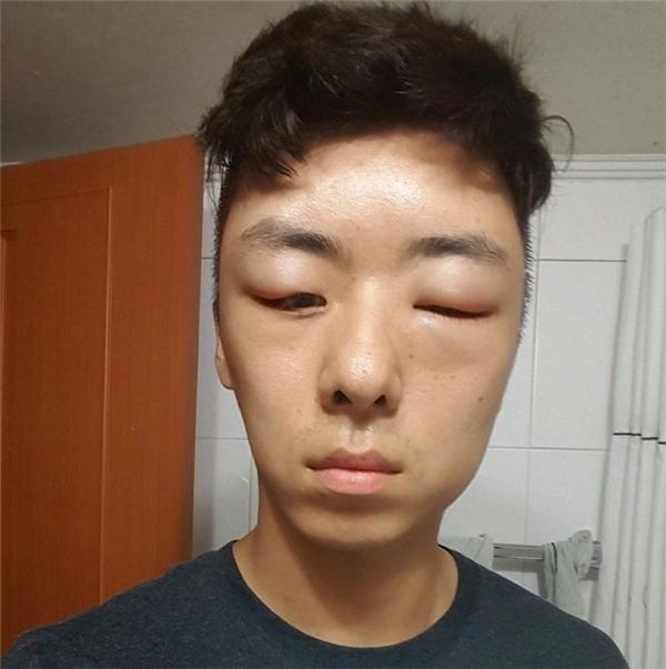 Khối u trên mặtcàng lúc càngto dần khiến mắt anh cũng không thể mở lên nổi và trông cứ như mới bị ong đốt.