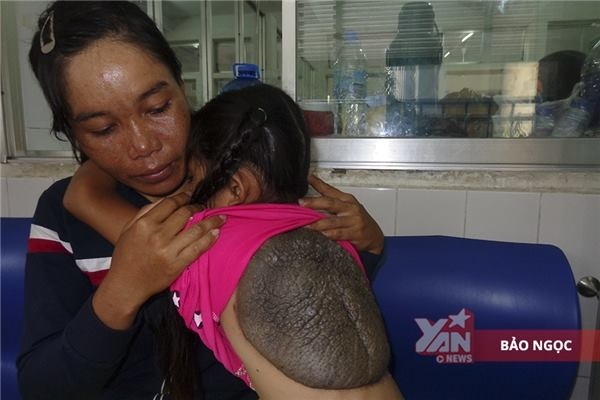 10 năm qua, chị Ni chưa có giấc ngủ ngon vì luôn thức để gãi lưng cho con gái ngủ.