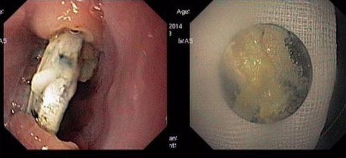 Viên pin tròn được phát hiện găm vào thực quản của một em bé 2 tuổi.