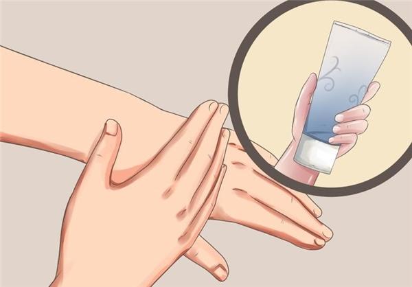 Thoa kem hoặc gel chống dị ứng khi bị muỗi đốt. (Ảnh: internet)