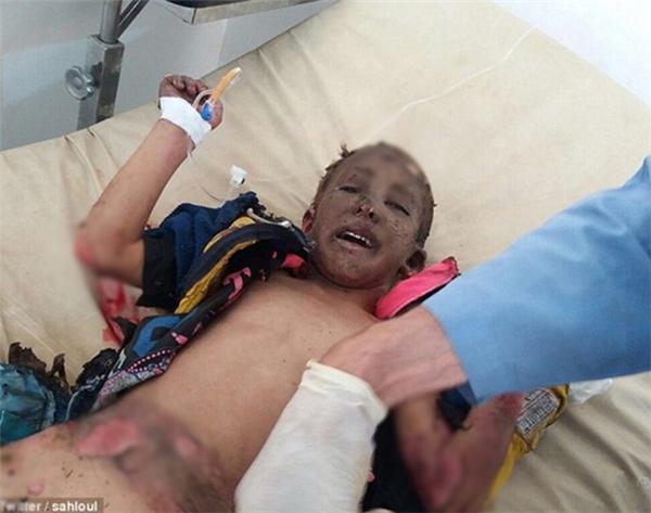 Ánh mắt ám ảnh của bé trai Syria bị trúng bom rúng động thế giới