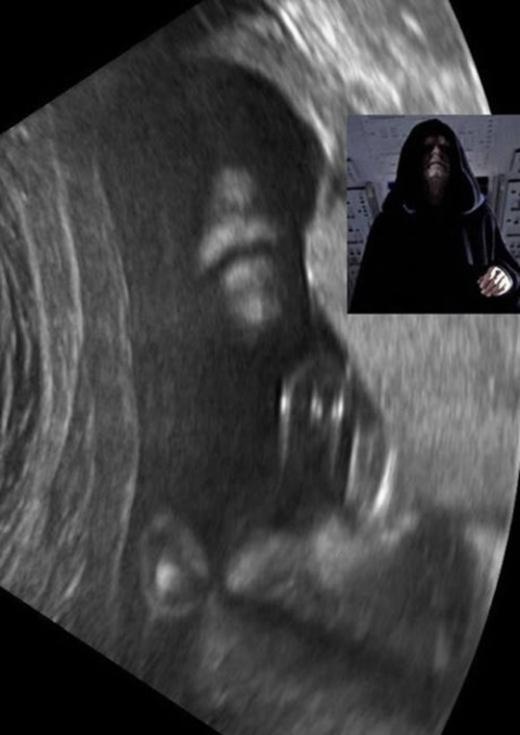 Đầu năm 2016 cũng từng xuất hiệnmột bức ảnh siêu âm đượclan truyền nhanh chóng trên mạng xã hội và nhận được nhiều lời bàn tán của cư dân mạng vì trông khágiống nhân vật Darth Vader trong phim Star Wars.