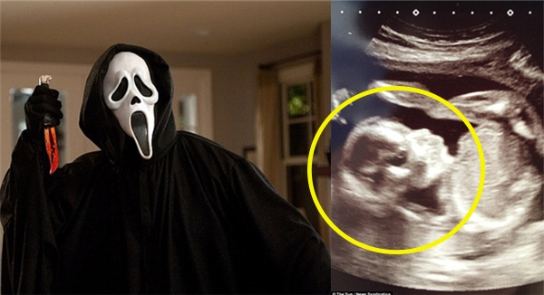 Một người phụ nữ có tên Paul Smithđãvô cùng ngạc nhiên khi thấy bức ảnh siêu âm của con mình có hình chiếc mặt nạ Screamhết sức đáng sợtrong phim kinh dị cùng tên.