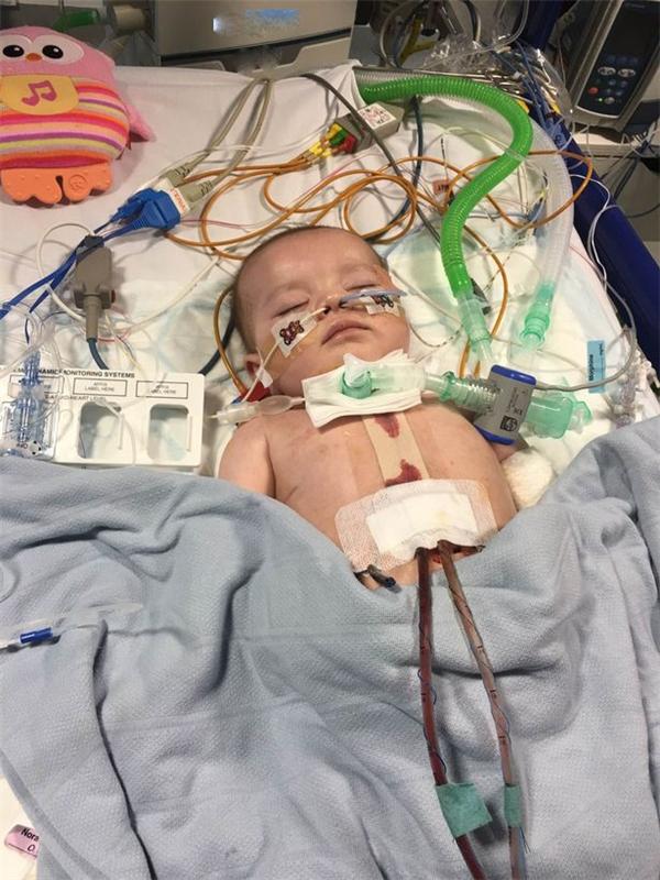 Được4 tháng tuổi, Gabriella lần nữa rơi vào cơn nguy kịch khi bắt đầu lên cơn co giật, thậm chí ngừng thở.