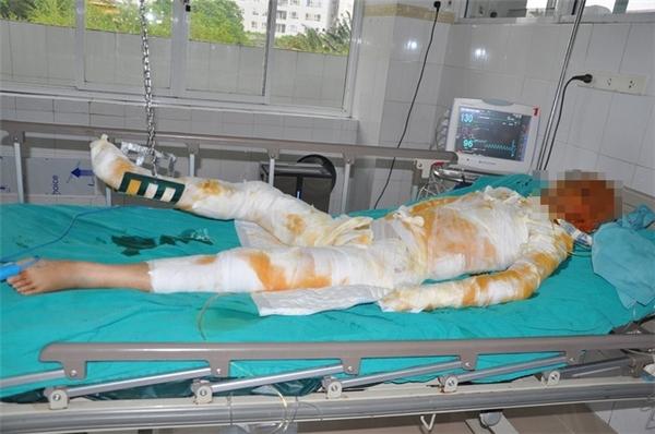 Tai nạn oan nghiệt khiến cô gái trẻ phải gác ước mơ, dự định tương để chiến đấu trên giường bệnh.