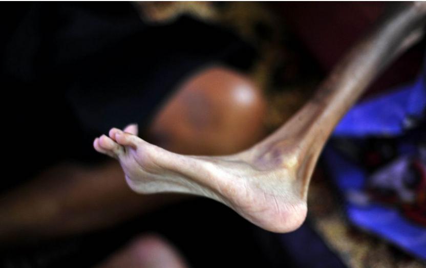 """Mắc một căn bệnh hiểm nghèo, cơ thểSyifanhư một """"bộ xương khô"""" không có chút sinh khí nào."""