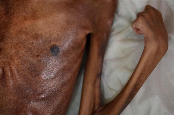 Cơ thể quắt queo khiếnSyifaphải chịu nhiều đau đớn