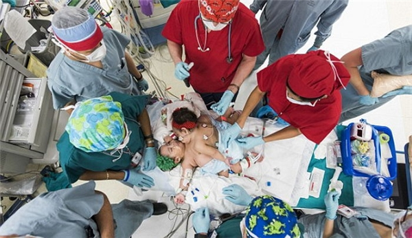 """Cuộc đại phẫu huy động đội ngu y bác sĩ """"khủng"""" với số lượng lên đến 26 người."""